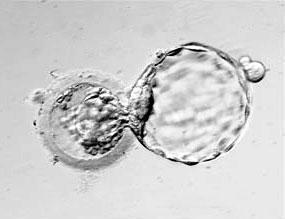 Wo bitte gibt es hier einen Menschen? (Embryo 4-5 Tage alt) - (Kinder, Menschen, Familie)