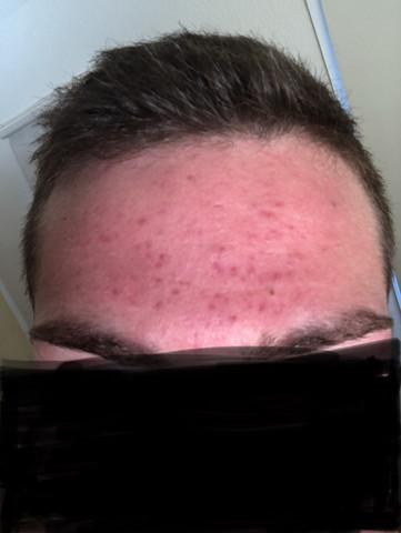 Was sind die roten Punkte auf meiner Stirn und was hilft