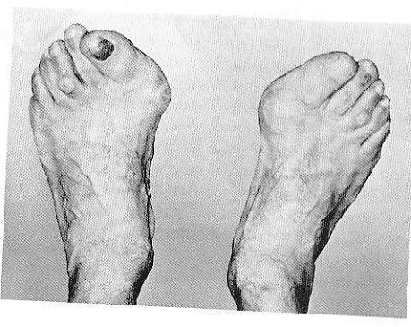 Der Traum vieler Frauen - (Gesundheit, Schuhe)