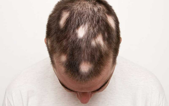 Weh bewege haare kopfhaut tut wenn ich die Trichodynie: Kopfhaut
