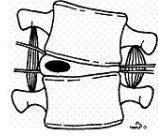 Folgen von Fehlbelastungen einer Bandscheibe  - (Schmerzen, Hals, Nacken)
