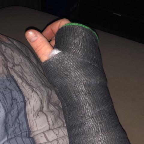 Gips arm wie lange gebrochen Ellenbogenfraktur, Operation