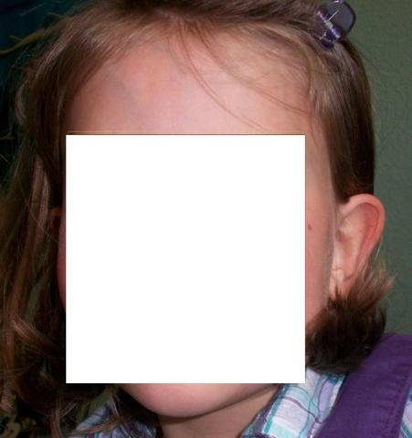Ich kurze Haare - (Ohr, Segelohren, Abstehende Ohren)