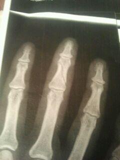 rechte Hand / Mittelfingerfraktur - (Gesundheit, Medizin, gebrochen..)