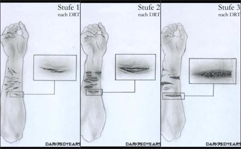 Die drei Stufen zur Veranschaulichung. - (Ritzen, nähen)