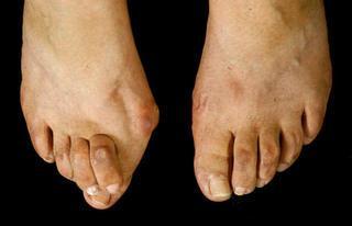 f8f76e90dd3a0 high heels - Forum für Lesben - LESARION