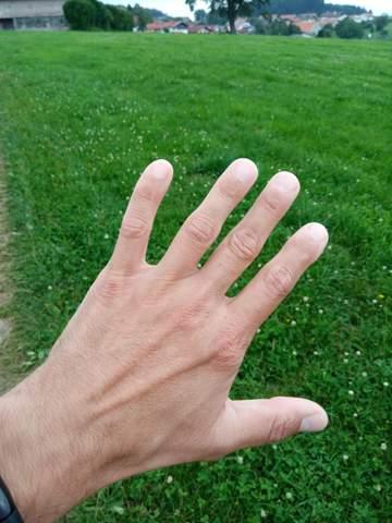 Adern An Den Händen