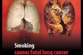 rauchen - (Gesundheit, rauchen, Zigaretten)