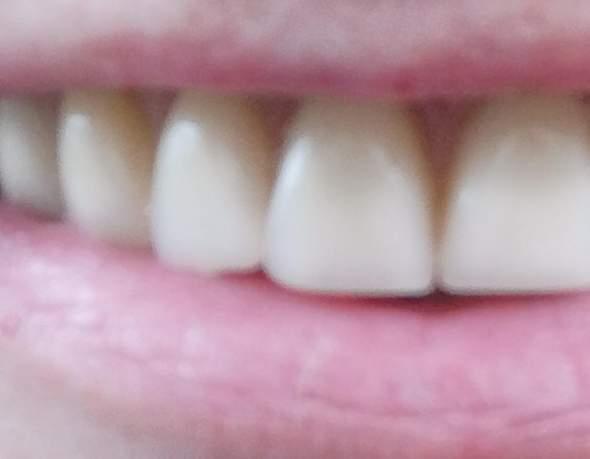 B1 zahnfarbe Endodontie