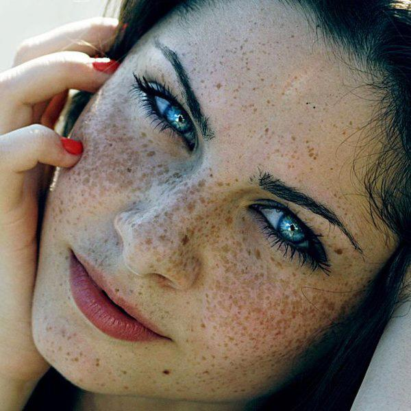 Das Foto der schönen Mädchen von der Sommersprosse