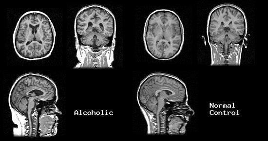 Alkoholiker Gehirn