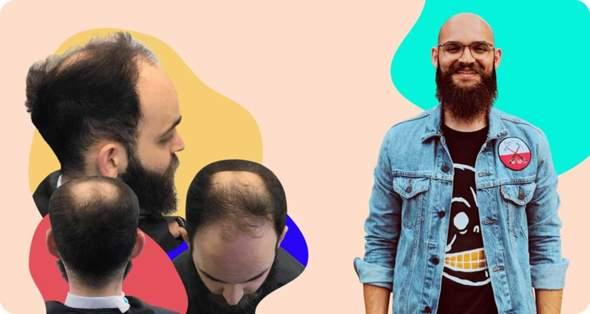 Women / men with bald here?