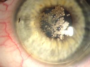 - (Gesundheit und Medizin, Augen, Kontaktlinsen)