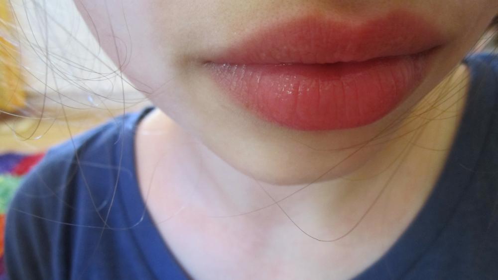 Fette Lippen