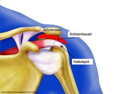 Kalkschulter - (Arzt, Schulterschmerzen)