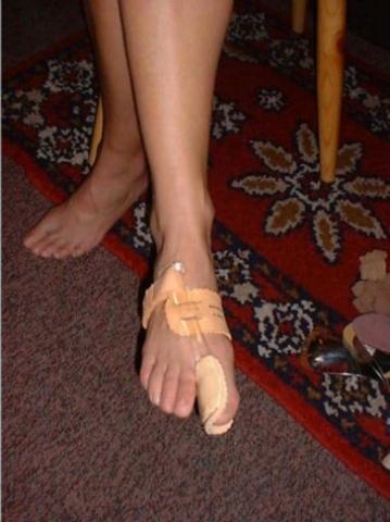 angelegte HV Nachtschiene - (Medizin, Füße, Orthopäde)