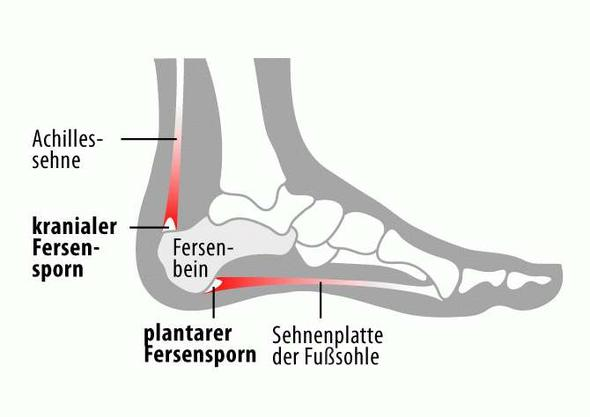 Gribok auf der Haut der Beine die Präparate für die Behandlung