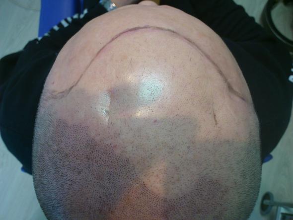 Die Masken mit dem Eigelb für die trockenen Spitzen des Haares