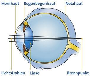 Das zur Weitsichtigkeit - (Physik, Augen, Optik)