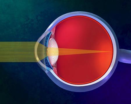 Auge - (Brille, Kontaktlinsen, Attraktivität)