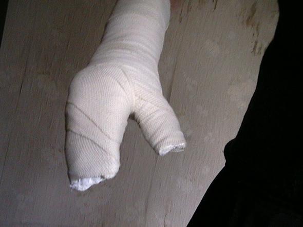 Gips lange gebrochen bein wie Knochenbruch beim