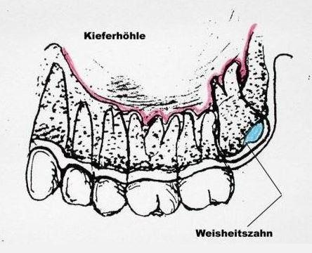Bild 1 - (Zahnarzt, Weisheitszähne)