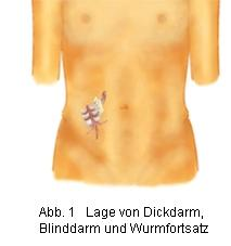 - (Bio, Blinddarm)