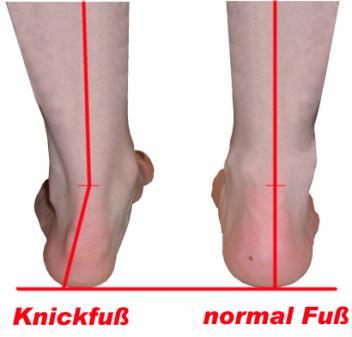 Knick Senkfuß es kann sich nach aussen und innen biegen. - (Sport, Medizin, joggen)