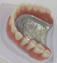 Vollprovisorium im Oberkiefer (Gesundheit, Zähne, Provisorium)