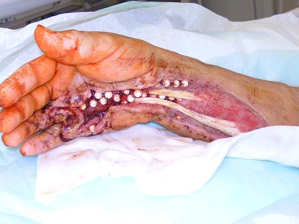 Hausmittel gegen handverletzung medizin verletzung for Was tun bei kleinen fliegen in der blumenerde