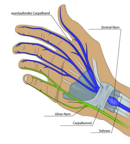 Wo liegt die sehne im kleinen Finger?... (Gesundheit, Medizin)