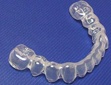 Knirscherschiene - (Zähne, Zahnschmerzen, Kiefer)