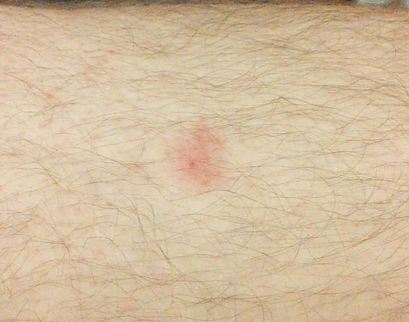 Hautrötung - (Insektenstich, insektenbiss, Hautreizungen)