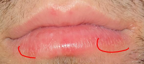 Wie wird man Herpes los? (Gesundheit und Medizin)