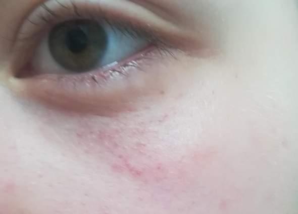 Rote Punkte Um Die Augen