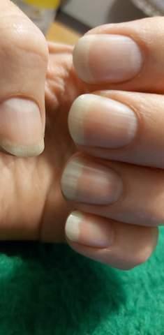 Fingernagel mann lange Hornhautverletzung des