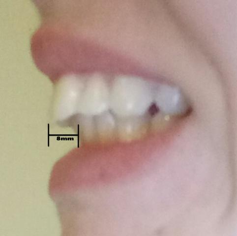 Von der seite - (Gesundheit und Medizin, Zahnspange, Kieferorthopäde)