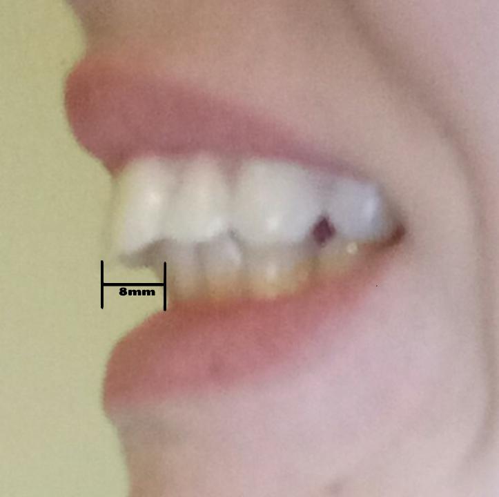 überbiss Zahnspange