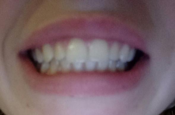 Von vorne - (Gesundheit und Medizin, Zahnspange, Kieferorthopäde)