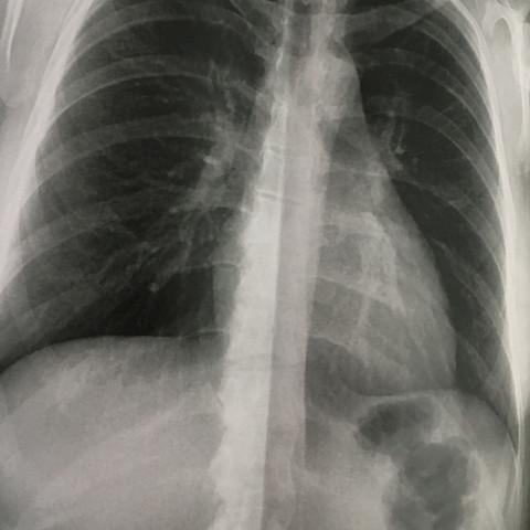 Von vorne - (Medizin, Brustbein, rippenbruch)