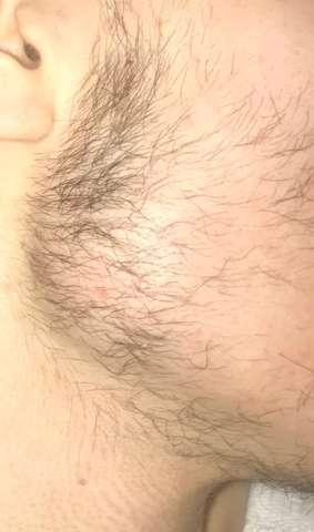 Bartwuchs Ungleichmäßig