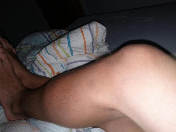 fuß - (Füße, Verletzung, Bluterguss)
