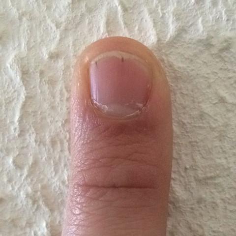 strich unterm fingernagel