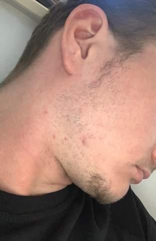 Bart bekommen mehr Bartwuchs aktivieren