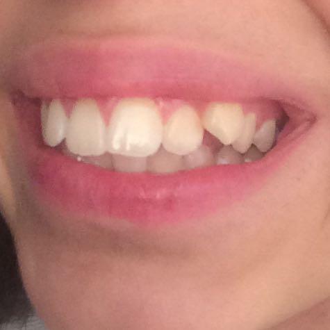 Von der Seite  - (Zahnspange, luecken, Zähneziehen)