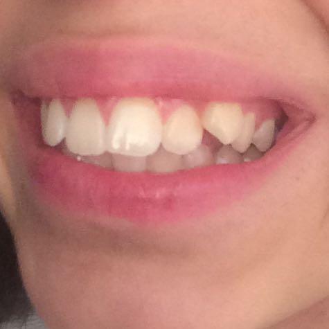 4 Zähne ziehen für die Zahnspange ist das notwendig? (luecken)