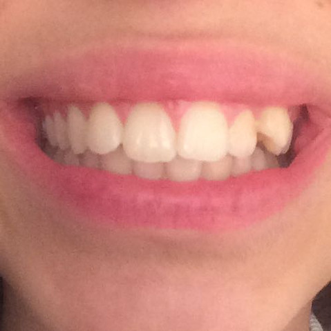 Von vorne - (Zahnspange, luecken, Zähneziehen)