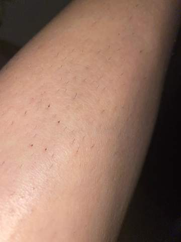 Schamlippe eingewachsenes haar Eingewachsene Haare