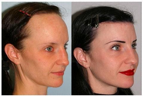 Hairline Lowering - (Internet, Haare, Beauty)