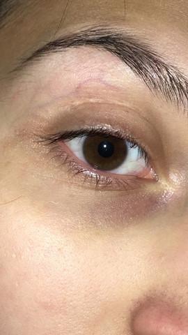 Freiraum suchen Promo-Codes Verkaufsförderung Abdruck von Kontaktlinse? (Augen, Kontaktlinsen, Farblinsen)